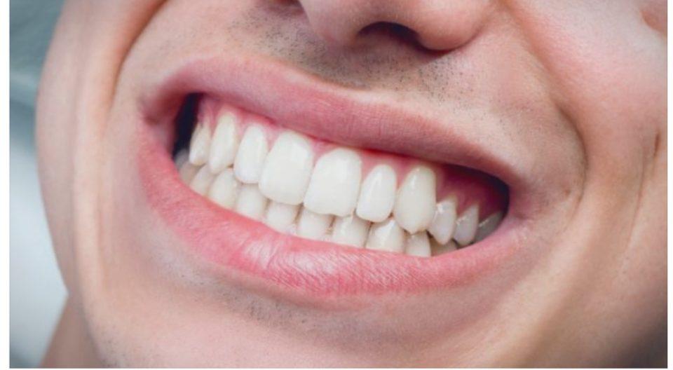Неквалитетната вода – причина за пожолтувањето на забите