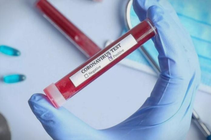 ОФИЦИЈАЛНО: Нови 12 случаи, лицата се од Скопје и Куманово – вкупно 148 заразени од коронавирус