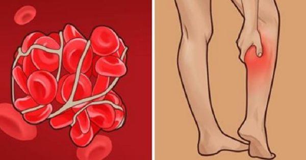 Ова се симптоми кои предупредуваат за можен тромб по вакцинирањето